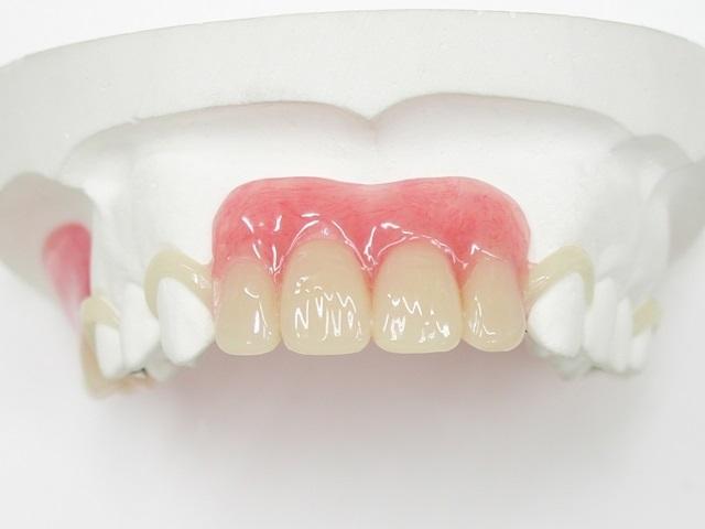 金具が見えないタイプの部分入れ歯